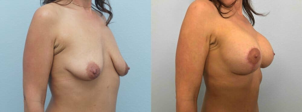 Breast Lift With Implants Gallery - Patient 48813518 - Image 2