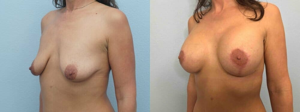 Breast Lift With Implants Gallery - Patient 48813518 - Image 4