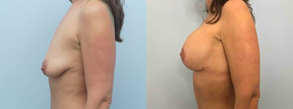 Breast Lift With Implants Gallery - Patient 48813518 - Image 5