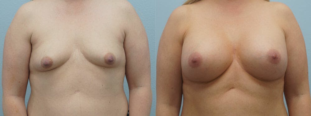 Breast Augmentation Gallery - Patient 48813524 - Image 1