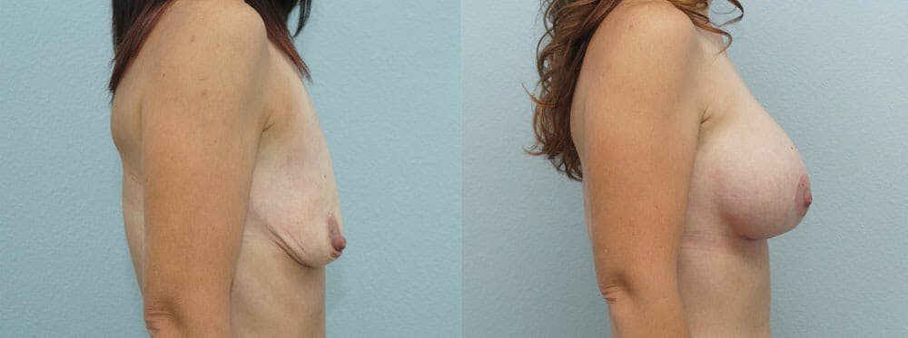 Breast Lift With Implants Gallery - Patient 48813527 - Image 3