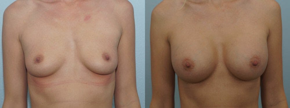 Breast Augmentation Gallery - Patient 48813547 - Image 1