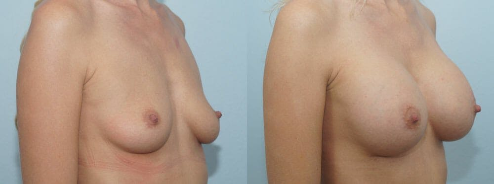 Breast Augmentation Gallery - Patient 48813547 - Image 2