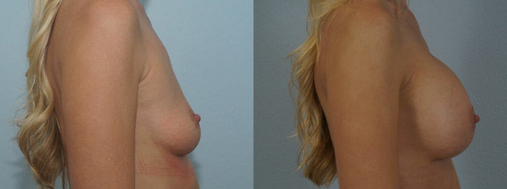 Breast Augmentation Gallery - Patient 48813547 - Image 3