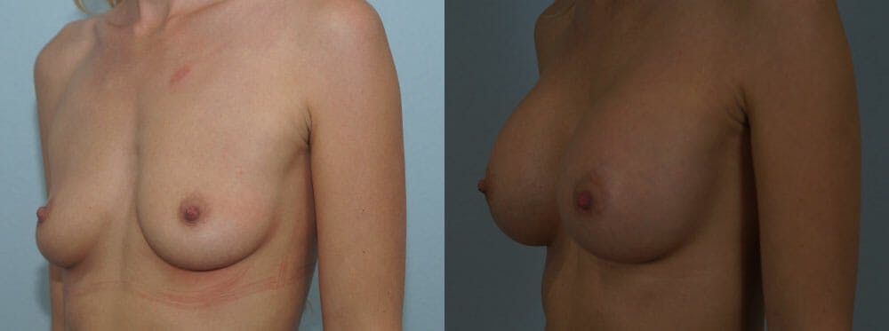 Breast Augmentation Gallery - Patient 48813547 - Image 4