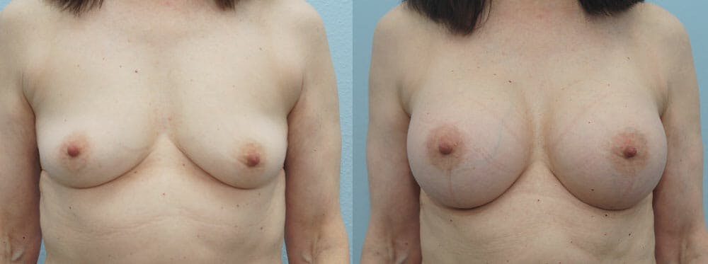 Breast Augmentation Gallery - Patient 48813558 - Image 1