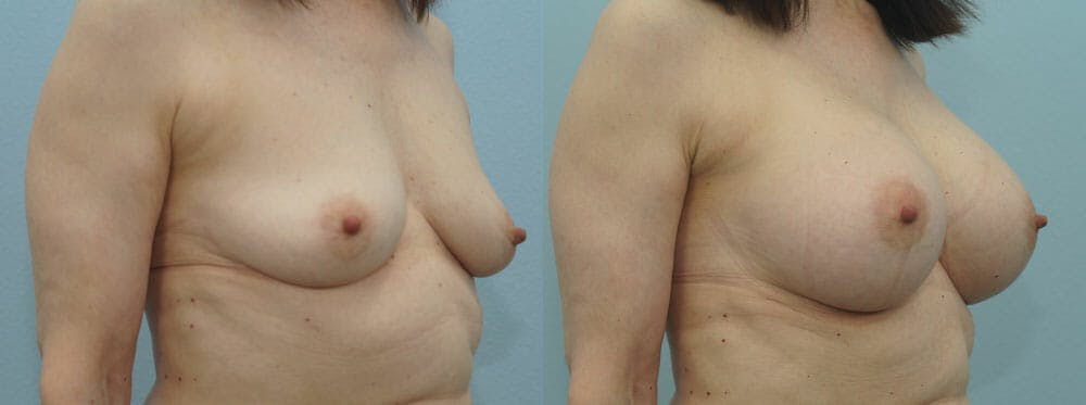 Breast Augmentation Gallery - Patient 48813558 - Image 2