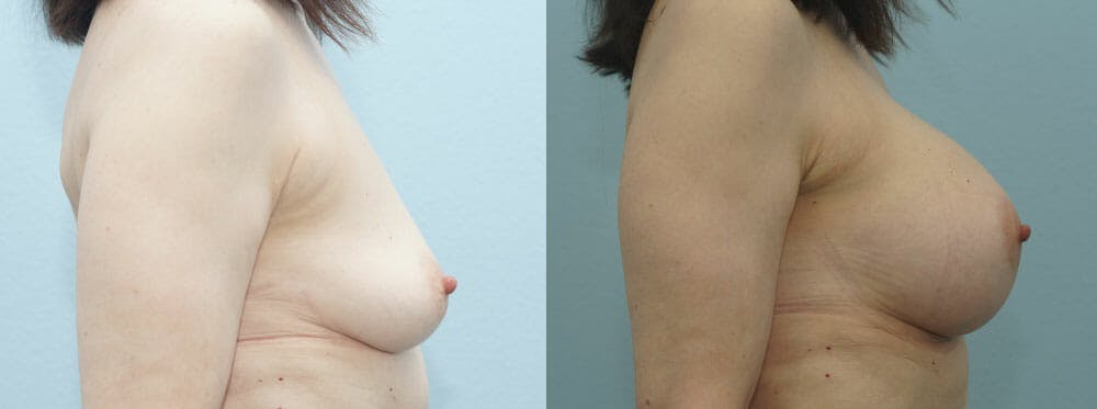 Breast Augmentation Gallery - Patient 48813558 - Image 3