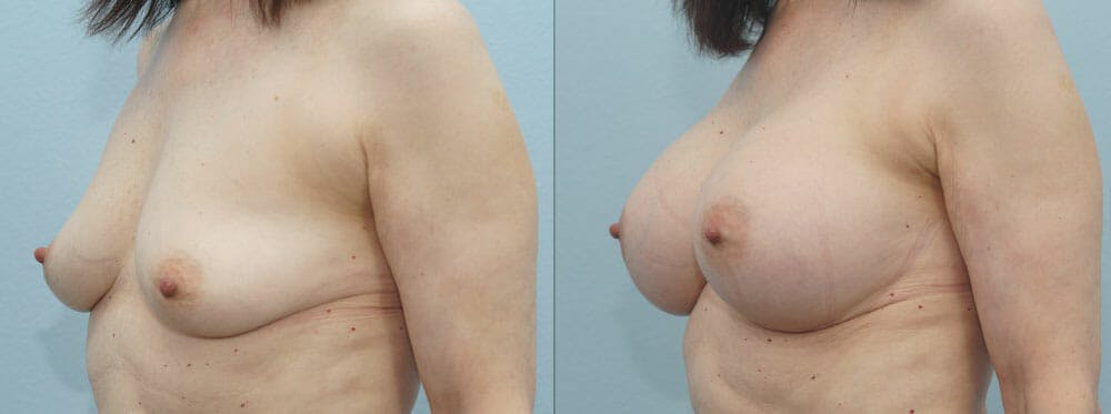 Breast Augmentation Gallery - Patient 48813558 - Image 4
