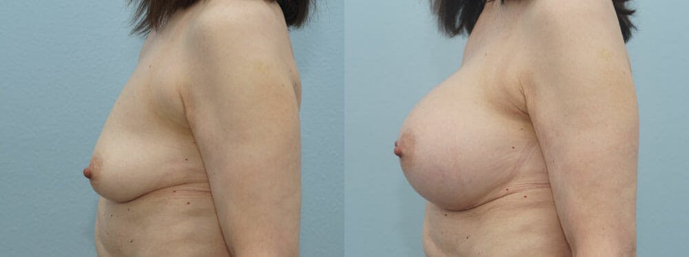 Breast Augmentation Gallery - Patient 48813558 - Image 5