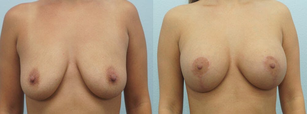 Breast Lift With Implants Gallery - Patient 48813564 - Image 1