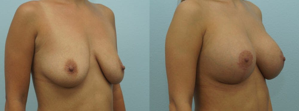 Breast Lift With Implants Gallery - Patient 48813564 - Image 2