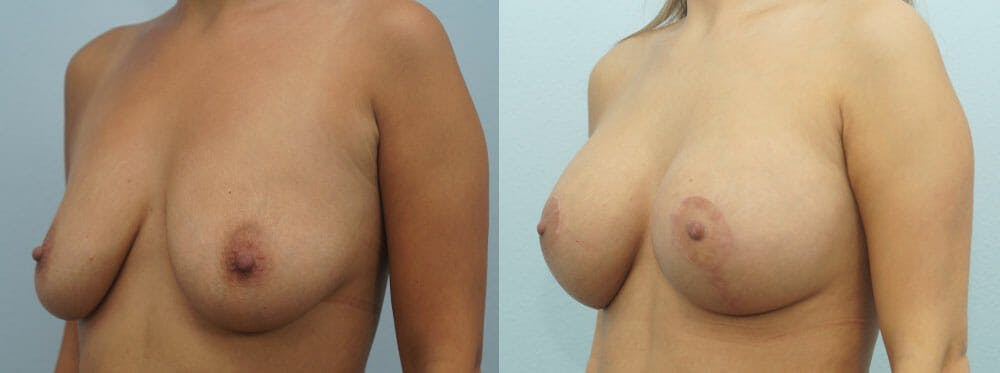 Breast Lift With Implants Gallery - Patient 48813564 - Image 4