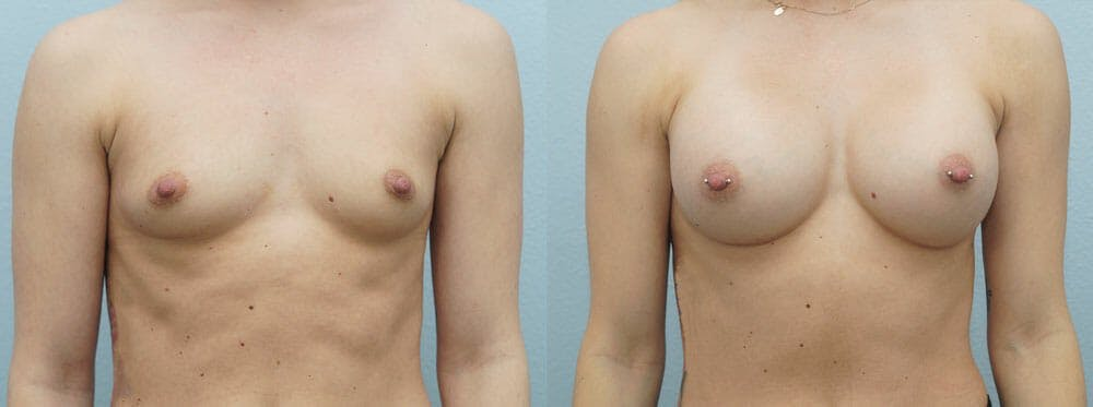 Breast Augmentation Gallery - Patient 48813569 - Image 1