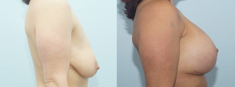 Breast Lift With Implants Gallery - Patient 48813576 - Image 3
