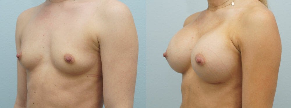 Breast Augmentation Gallery - Patient 48813577 - Image 2