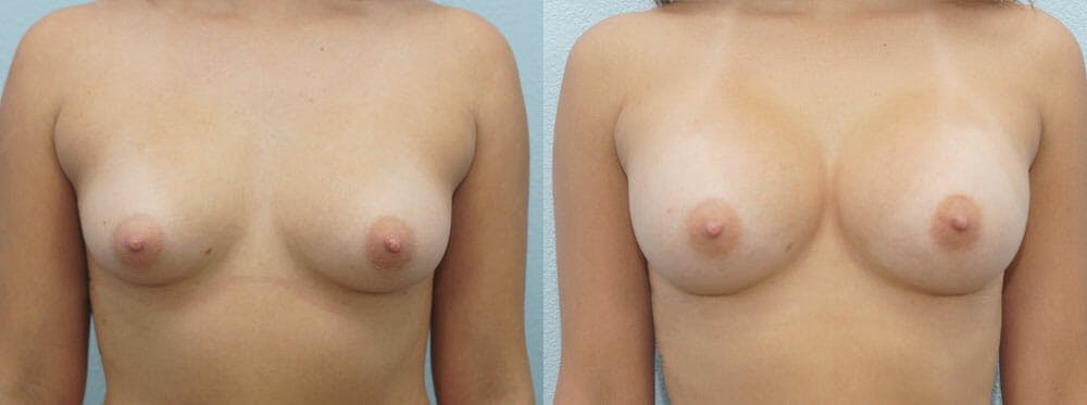 Breast Augmentation Gallery - Patient 48813585 - Image 1