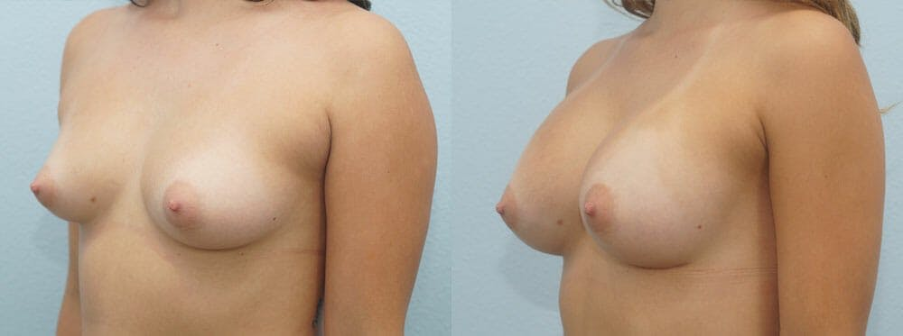 Breast Augmentation Gallery - Patient 48813585 - Image 2