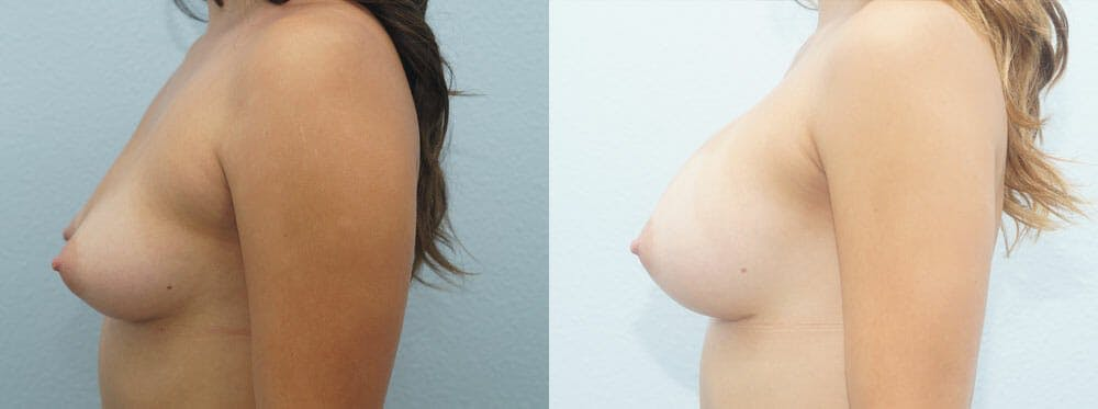 Breast Augmentation Gallery - Patient 48813585 - Image 3