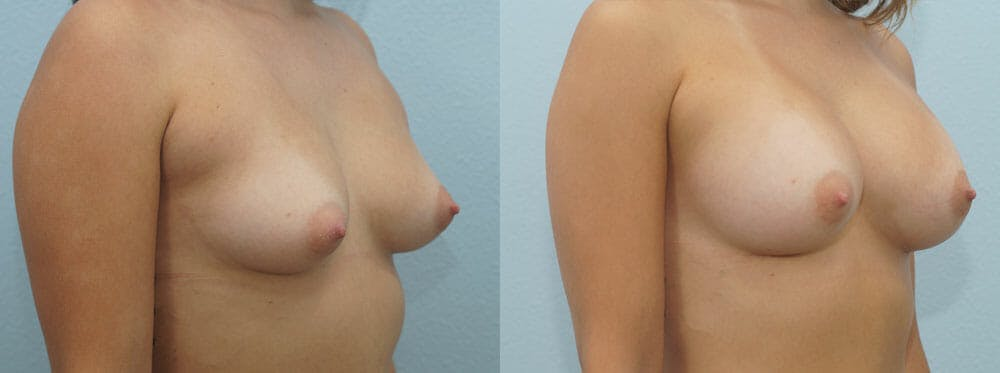Breast Augmentation Gallery - Patient 48813585 - Image 4