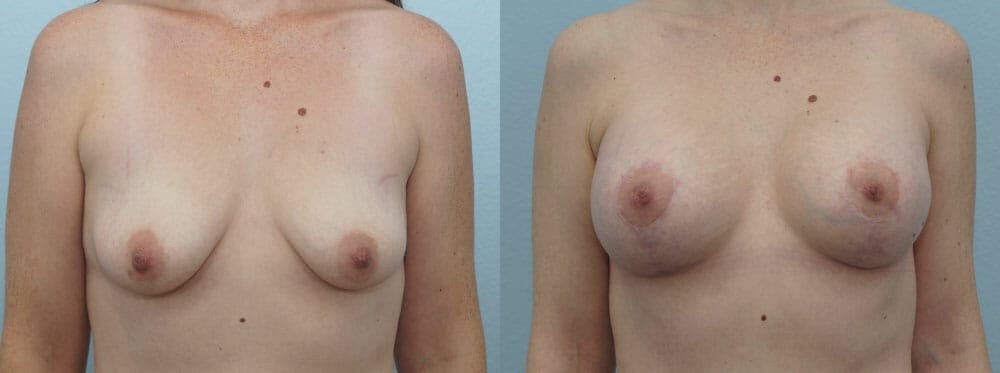 Breast Lift With Implants Gallery - Patient 48813599 - Image 1