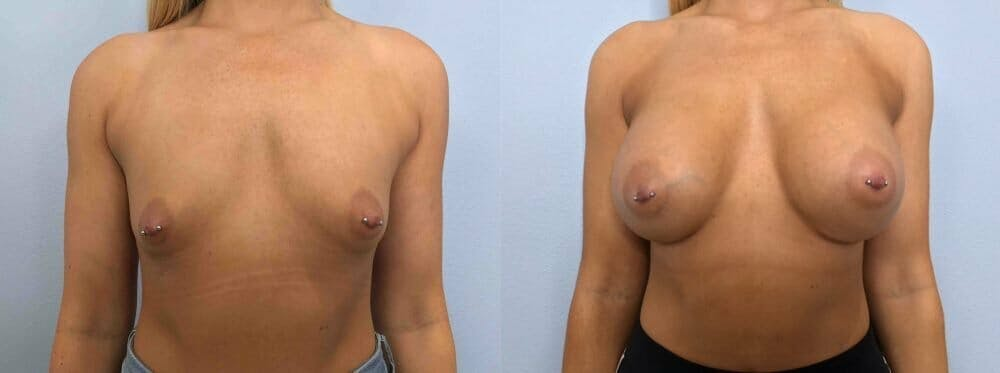Breast Augmentation Gallery - Patient 48813600 - Image 1