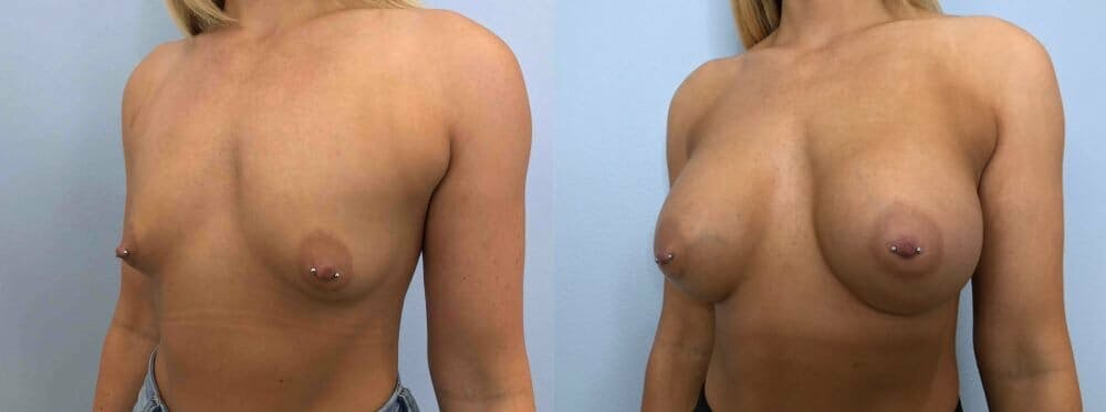 Breast Augmentation Gallery - Patient 48813600 - Image 2