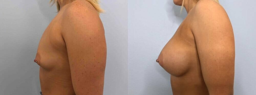 Breast Augmentation Gallery - Patient 48813600 - Image 3