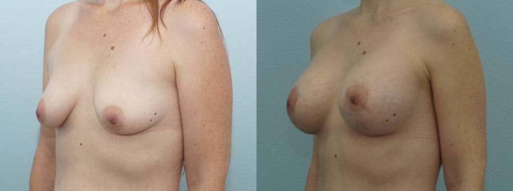 Breast Lift With Implants Gallery - Patient 48813599 - Image 4