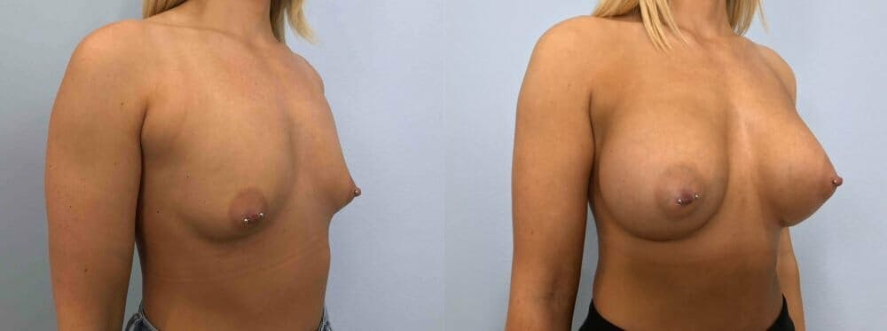 Breast Augmentation Gallery - Patient 48813600 - Image 4