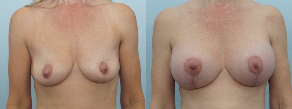 Breast Lift With Implants Gallery - Patient 48813607 - Image 1