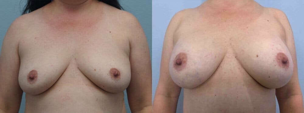 Breast Augmentation Gallery - Patient 48813608 - Image 1