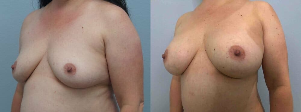 Breast Augmentation Gallery - Patient 48813608 - Image 2