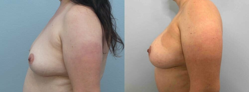 Breast Augmentation Gallery - Patient 48813608 - Image 3