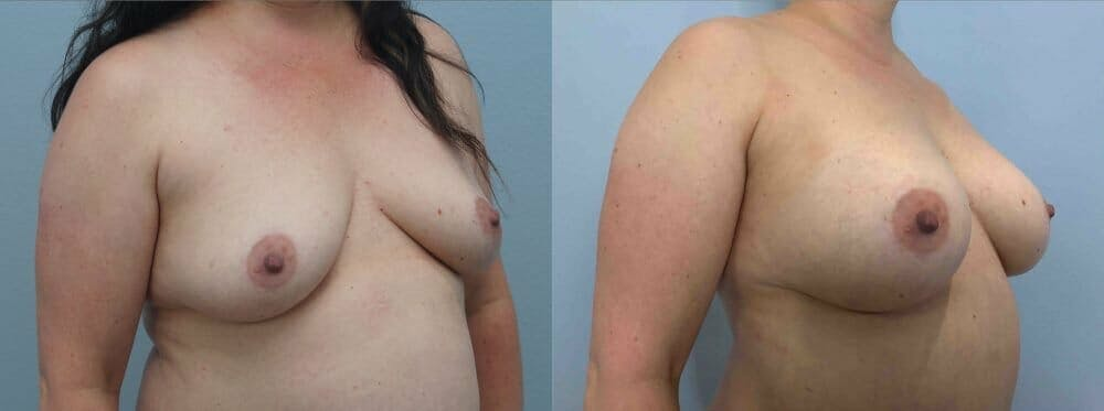 Breast Augmentation Gallery - Patient 48813608 - Image 4