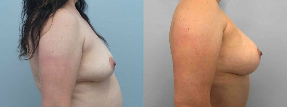 Breast Augmentation Gallery - Patient 48813608 - Image 5