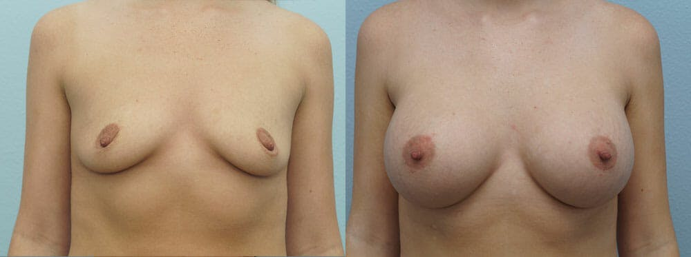 Breast Augmentation Gallery - Patient 48813614 - Image 1
