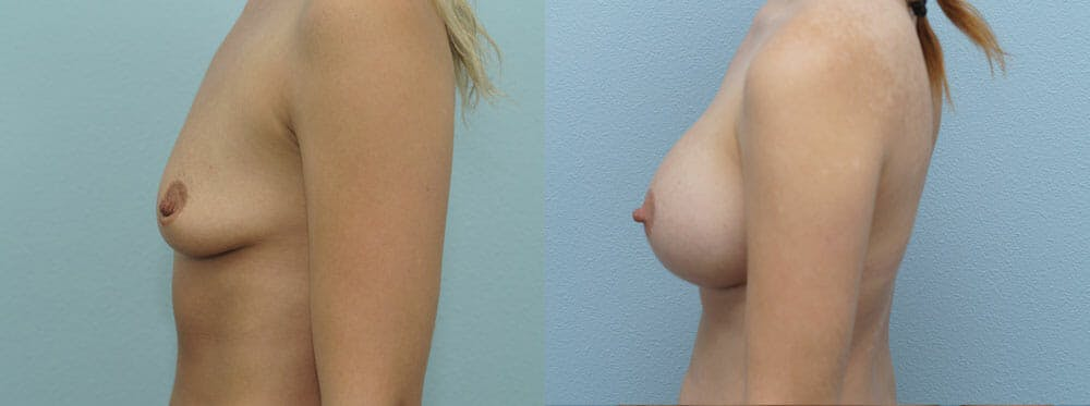 Breast Augmentation Gallery - Patient 48813614 - Image 2