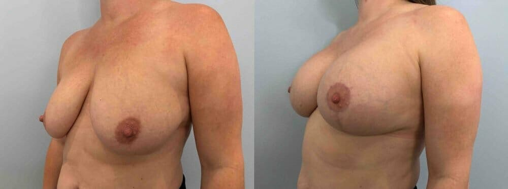 Breast Lift With Implants Gallery - Patient 48813617 - Image 2
