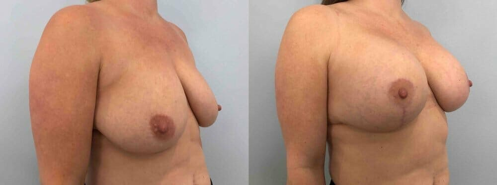 Breast Lift With Implants Gallery - Patient 48813617 - Image 4