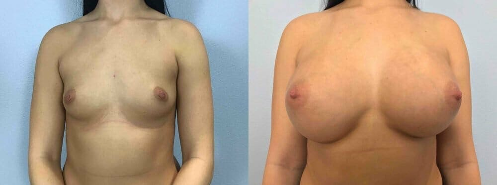 Breast Augmentation Gallery - Patient 48813623 - Image 1