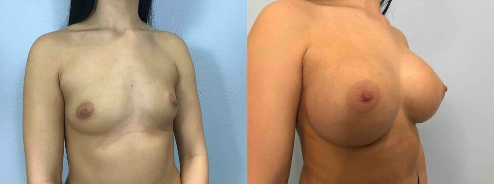 Breast Augmentation Gallery - Patient 48813623 - Image 2