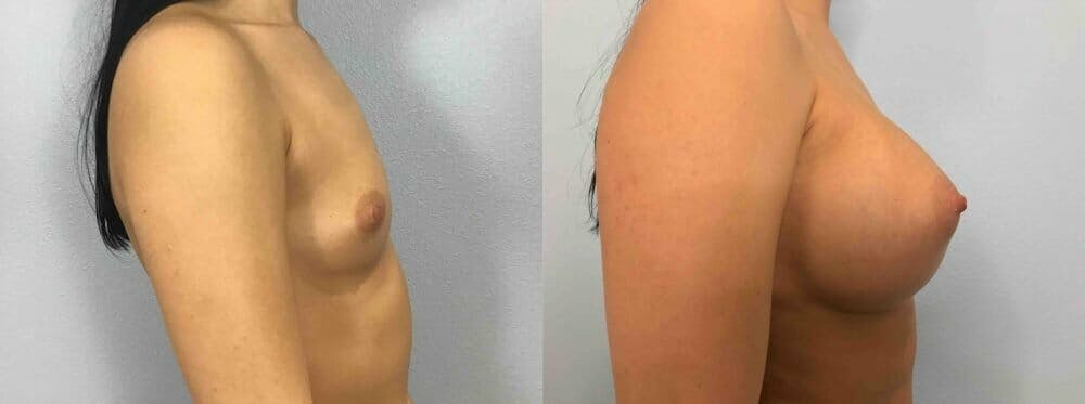 Breast Augmentation Gallery - Patient 48813623 - Image 3