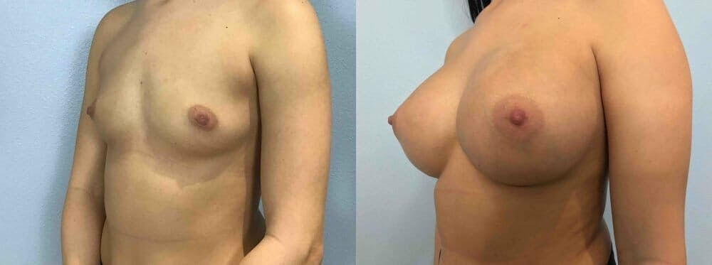 Breast Augmentation Gallery - Patient 48813623 - Image 4