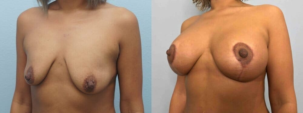 Breast Lift With Implants Gallery - Patient 48813625 - Image 2