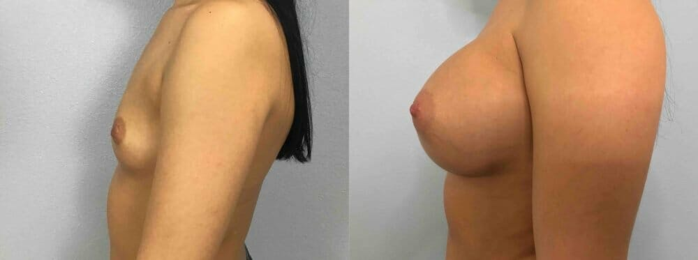 Breast Augmentation Gallery - Patient 48813623 - Image 5