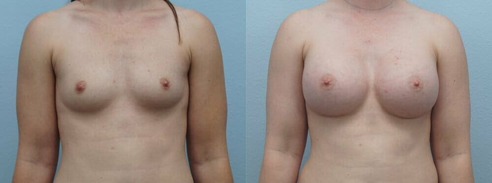 Breast Augmentation Gallery - Patient 48813631 - Image 1