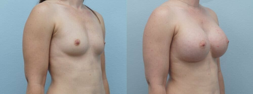 Breast Augmentation Gallery - Patient 48813631 - Image 2