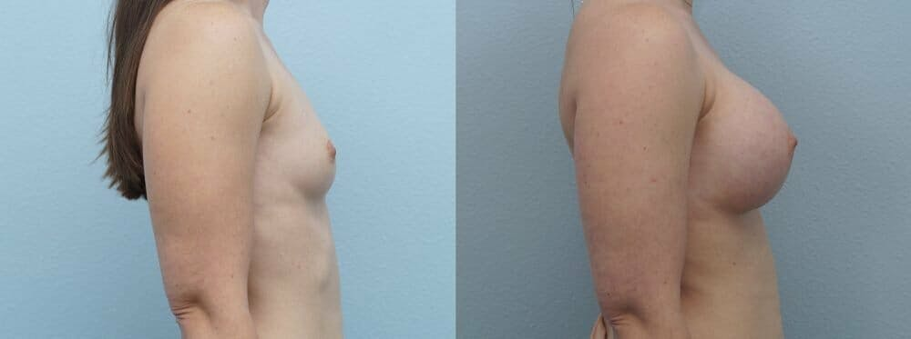 Breast Augmentation Gallery - Patient 48813631 - Image 3