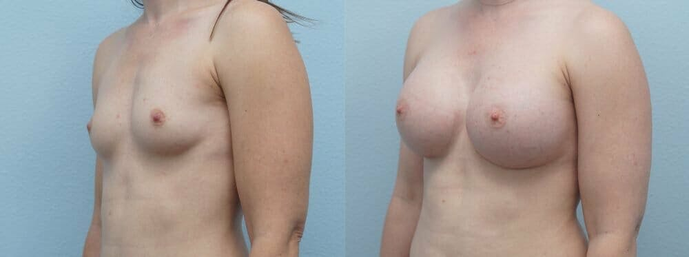 Breast Augmentation Gallery - Patient 48813631 - Image 4